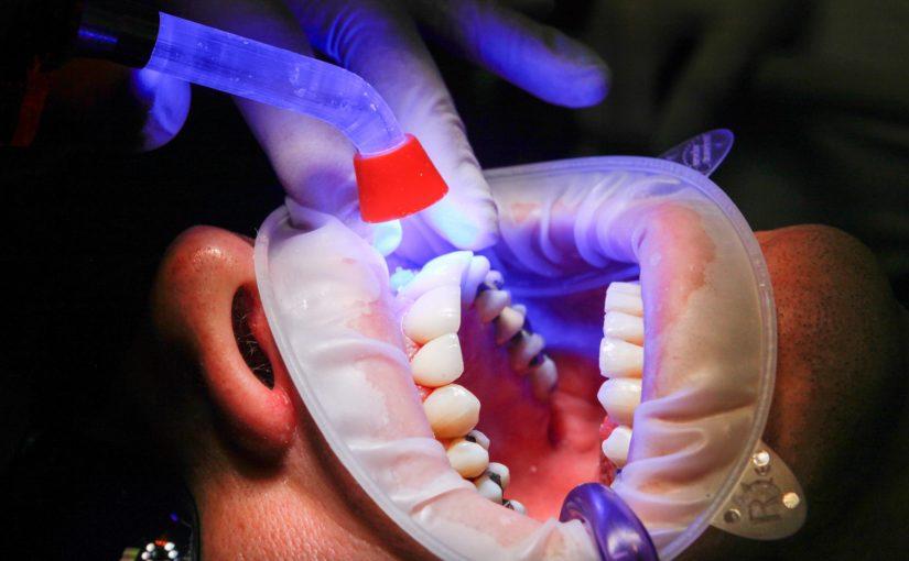 Zła sposób żywienia się to większe braki w jamie ustnej a dodatkowo ich zgubę